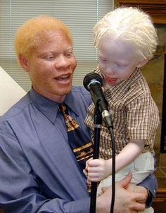Black people can be albino too. Albinism results from a recessive gene in both parents that results in a lack of melanin in their child. at one time, albinos were considered evil and were even hunted or persecuted in some countries. Albino African, Beautiful Children, Beautiful People, Melanism, Afro, Portraits, People Of The World, Shades Of Black, Black Is Beautiful