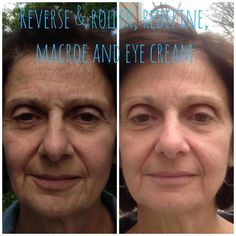 Started with Reverse and roller, then moved to Redefine, Macro Exfoliator, and eye cream a few months later. Aging in reverse! Redefine Regimen, Rodan And Fields Redefine, Multifunction Eye Cream, Amp Md Roller, Under Eye Primer, Under Eye Makeup, Aging Backwards, Sagging Skin, Good Skin