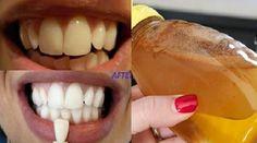Gargarisez-vous avec ces ingrédients simples et voyez ce qui arrive à vos dents