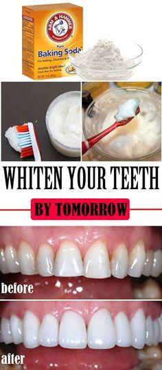 Whiten your teeth by tomorrow #teethwhitening