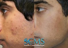 South Coast MedSpa Laser Acne Scar Removal how to get rid of acne scars Laser For Acne Scars, Laser Acne Scar Removal, How To Get Rid Of Acne, How To Remove, Adult Acne Treatments, Pimple Scars, Scar Treatment, Acne Solutions, Acne Breakout