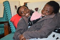 Image result for conjoined twins