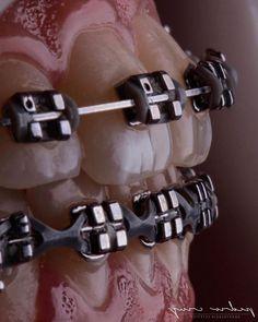 Dental Photography, Photography Shop, Dental Braces, Teeth Braces, Dental Photos, Braces Colors, Dental Art, Dentistry, Medical