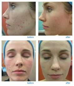 Fractional laser treatment has a straightforward aim: replace damaged skin with fresh new skin. Our patients have benefited greatly since the introduction of the fractional laser at our New York City and Brooklyn offices Fractional Co2 Laser, Laser Surgery, Facial Exercises, Best Natural Skin Care, Uneven Skin Tone, New Skin, Acne Scars, Skin Treatments