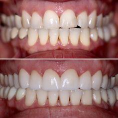 Upper 10 porcelain veneers, lower 5 unit zirconia bridge, laser whitening on lower teeth. #davincidental #bellevuedentist #dentist #veneers #whitening http://www.dentistinbellevue.com