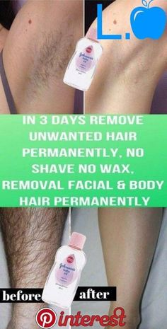 REMOVE UNWANTED HAIR PERMANENTLY IN THREE DAYS, NO SHAVE NO WAX, REMOVAL FACIAL & BODY HAIR PERMANENTLY - L Natural Medicine #UnwantedHairOnChin #ElectrolysisHairRemoval #BestPermanentHairRemoval Underarm Hair Removal, Chin Hair Removal, Upper Lip Hair Removal, Electrolysis Hair Removal, Hair Removal Methods, Permanent Facial Hair Removal, Remove Unwanted Facial Hair, Unwanted Hair, Make Up Tools