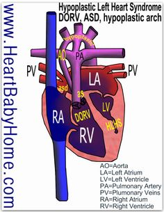 This is the closest I've found to Chase's heart.   Heart defect: hypoplastic left heart syndrome (HLHS) with hypoplastic aortic valve and arch, also double outlet right ventricle (DORV) and atrial septal defect (ASD) … Continue reading →