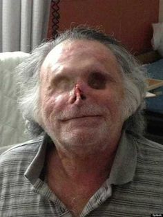 Miami cannibal attack victim Ronald Poppo, before and after - The Weird Picture Archive