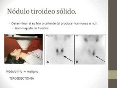 Cirugia de Tiroides.