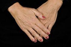 Hender har tynn hud og utsettes for vær og vind. Restylane kan gjøre hendene unge igjen. Holding Hands, Hand In Hand