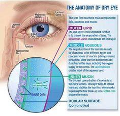 The Incidence of Dry Eye Disease Related to Long Term Diabetes Mellitus Tip 2 Authored by Nora Burda in Juniper Publishers What Causes Dry Eyes, Dry Eye Treatment, Dry Eye Symptoms, Eye Anatomy, Eye Facts, Eye Pain, Vision Eye, Healthy Eyes, Eyes Problems