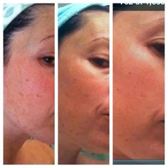NERIUM   1. FREE for 5 days to see what you think.  2. 30 day money back guarantee.  3. Refer 3 customers you get yours FREE?  I haven't found anyone else that let me do that. OH AND NERIUM REALLY WORKS!