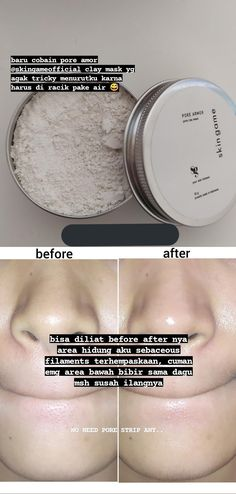 Face Skin Care, Diy Skin Care, Healthy Skin Tips, Skin Care Routine Steps, Skin Makeup, Beauty Skin, At Least, Make Up, Skincare