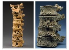 Spinal column bone destruction from tuberculosis. (Source: Smithsonian Institution)