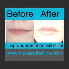 sams-lips.jpg (960×960)