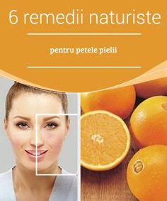 Peta, Creme, Orange, Fruit, Hip Bones, Varicose Veins, Maps