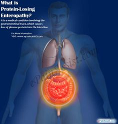 Protein losing enteropathy is a medical condition involving the gastrointestinal tract, which causes loss of plasma protein into the intestine. Know the causes, symptoms, treatment, pathophysiology and diagnosis of Protein losing enteropathy. Abdominal Pain, Protein, Conditioner, Lost, Medical, Medicine, Med School, Upset Tummy, Active Ingredient