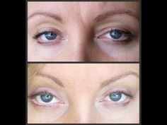 Rosacea, large pores, wrinkles, chronic fatigue, fibromyalgia, ALL GONE!