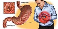 Salute: se la gastrite sta divorando lo stomaco, si può eliminare per sempre in pochi minuti solo in questo modo, è assolutamente efficace e garantito ?