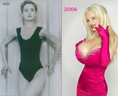Argentine celebrity Sabrina Sabrok Breast Implants - Before After | Cosmetic Plastic Surgery