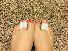 dedos del pie pegados