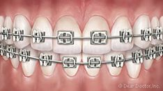 Dental Care Tips That Will Greatly Improve Your Smile - UltraSonic ToothBrush Smile Dental, Dental Braces, Teeth Braces, Dental Care, Different Types Of Braces, Ultrasonic Toothbrush, Smile Care, Dentist Near Me, Wand Tattoo