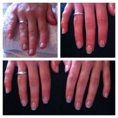 Emma Possum Nails Before And After Acrylic Extensions X Taken