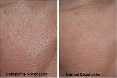 3 Masken gegen erweiterte Poren — Besser Gesund Leben Enlarged pores are very common and are often covered by makeup. It is better to find out and treat the causes. In this post you will learn more about this topic. Beauty Make Up, Beauty Care, Diy Beauty, Beauty Skin, Health And Beauty, Beauty Hacks, Dilated Pores, Tips Belleza, Homemade Beauty