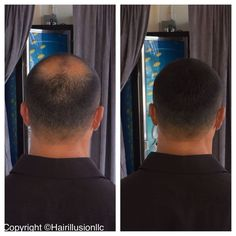 3 Bottles HAIR ILLUSION 38g Not Toppik/Caboki Fibers Hair Loss Jet Black #HairIllusion