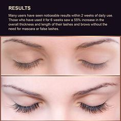 5b2c22bb29f Amazon.com: Silksence Eyelash Growth Serum for Lash and Brow Irritation  Free Formula (5ML): Beauty