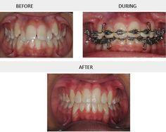 Porcelain Crowns, Teeth Braces, Gallery, Smile, Roof Rack, Teeth Retainer, Laughing