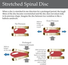"""Kalpna Shenoy put up a very relevant question :"""" How can I Strength Train with a Herniated Disc ? Or indeed do any Exercises with a hernia..."""