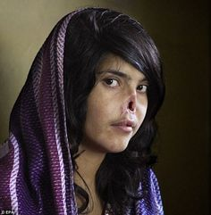 Tortured by her Afghan husband when she tried to escape forced marriage  But her facial rebuilding treatment at hospital is now reaching halfway point       Aesha's story was first told in 2010 by Time magazine, who published this harrowing cover photo of her - horrifying people around the world and symbolising the oppression of Afghan women