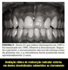 Avaliação clínica de reabsorção radicular externa em dentes desvitalizados submetidos ao clareamento | OVI Dental