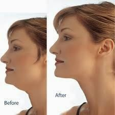 Tips to Lose Chin Fat - Medi Craze