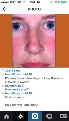 Otc Rosacea Medication 105144 - Rosacea. You have nothing to lose! Visit Site Now.