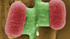MCR-1, une « super-bactérie » ultra résistante est issue d'une souche mutante de la bactérie E. Coli