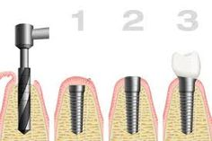 Dentist prices dental help,teeth cleaning tartar removal free dental care,cure for swollen gums around tooth gums always bleed. Dental Implant Surgery, Teeth Implants, Free Dental Care, Tartar Removal, Swollen Gum, Nyc, Dental Hygiene, Teeth Cleaning, Form