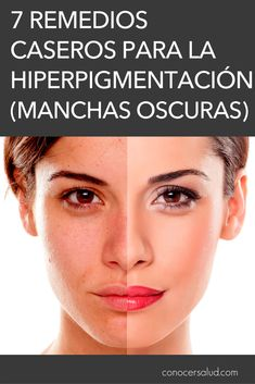 7 Remedios caseros para la hiperpigmentación (manchas oscuras) - Conocer Salud Bella Beauty, Beauty Makeup, Hair Beauty, Chip And Dale, Take The First Step, Tips Belleza, Natural Cosmetics, Young And Beautiful, Skin Care Regimen