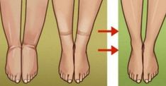 Watch This Video Ambrosial Home Remedies Swollen Feet Ideas. Inconceivable Home Remedies Swollen Feet Ideas. Foot Remedies, Natural Remedies, Water Retention Remedies, Natural Colon Cleanse, Colon Detox, Body Tissues, Sport Fitness, Fitness Women, Water Weight
