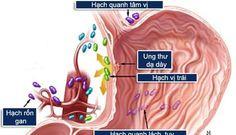 bệnh ung thư dạ dày, các phương pháp điều trị bệnh ung thư, chữa bệnh ung thư dạ dày, chong ung thu, http://akchongungthu.com/ung-thu-da-day-cac-bien-phap-chan-doan-va-dieu-tri/ akchongungthu.com