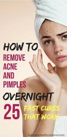 Are you suffering from annoying acne and blemishes? Learn how to get rid of stubborn pimples almost overnight.
