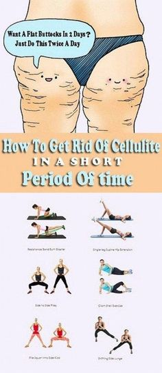 Causes Of Cellulite, Cellulite Exercises, Reduce Cellulite, Anti Cellulite, Cellulite Workout, Fitness Workouts, Easy Workouts, Workout Routines, Fitness Weightloss