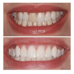 How To Whiten Teeth With Braces Teeth Whitening For Women