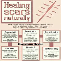 God's Garden of Eden Healing Scars Naturally ❥➥❥ Will YOU try any of these 6 tips? Coconut oil (preventing & reversing free radical damage on skin)❣ Carrot juice (cleanses & beautifies skin)❣ Natural Cures, Natural Healing, Scar Healing, Natural Beauty, Holistic Healing, Natural Skin, Natural Treatments, Skin Treatments, Getting Rid Of Scars