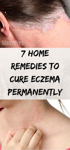 Best Ointment For Eczema. Itchy skin and eczema medication. On the list of various chronic skin disorders, eczema is among the most frequent. Home Remedies For Eczema, Oils For Eczema, Natural Remedies, Medicine For Eczema, Diabetes, Get Rid Of Eczema, Eczema Relief, How To Treat Eczema, Healing