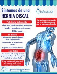 causas comunes de dolor de espalda y cadera
