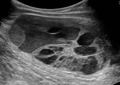 WK 5 RETROPERITONEUM Longitudinal Mixed cystic and solid intramuscular mass that proved to be a high grade sarcoma Ultrasound School, Pregnancy Ultrasound, Ultrasound Sonography, Fundamentals Of Nursing, Obstetrics And Gynaecology, Medical Imaging, Pediatrics, Radios, Seasons