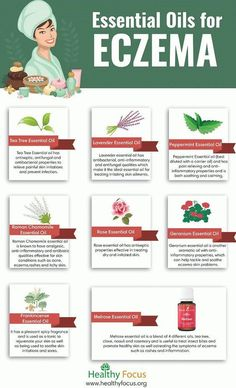 Battle Eczema With The Following Useful Tips ** You can get more details by clicking on the image. #Eczema