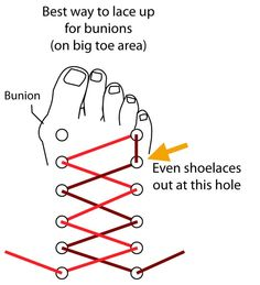 Tip: Best Way to Lace Up Shoes to Ease on Bunions Here's a great way to ease the pressure from your bunion. In this image below you can see that for your right shoe, you should skip the top left lace hole in order to ease the pressure on a bunion that you Health Tips, Health And Wellness, Health And Beauty, Health Fitness, Bunion Relief, Pain Relief, Bunion Remedies, Gout Remedies, Sleep Remedies